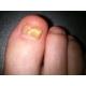 Scholl Fungal Nail ničí 99.9%mykózu nechtov.